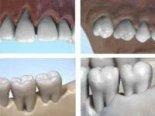 Parodontologie Studien- und Zahnmodelle