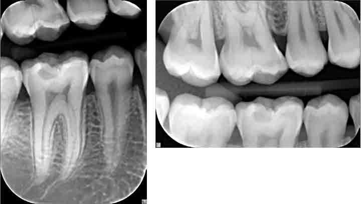 Focus Intraorales Röntgen Immer Nah Am Patienten Kavo Dental