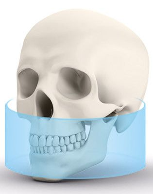 OP 3D Vision Extraoral