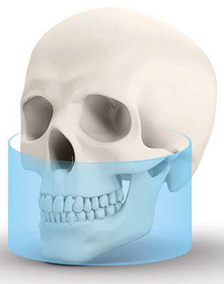 OP 3D Extraoral