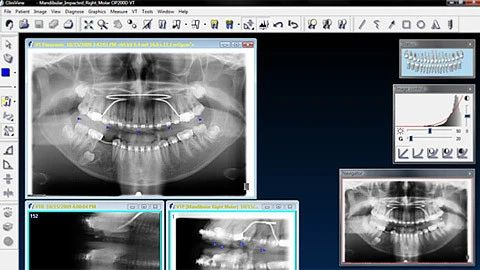 CliniView X-ray Software