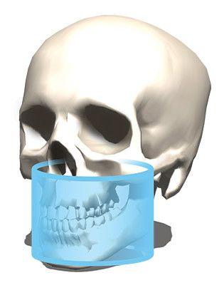 KaVo-OP-3D-Pro-cone-beam-fov