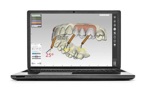 KaVo LS 3 Scanner Full Articulator Scanner | KaVo Dental