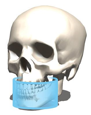 OP 3D Pro Equipo de RX extraoral