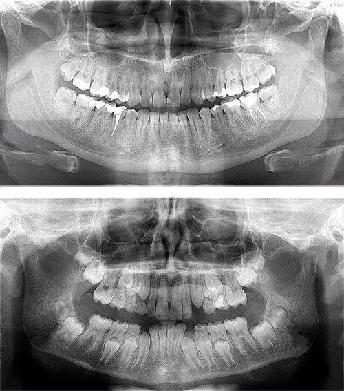 OP 2D™ El mejor punto de partida a la radiografía panorámica digital ...