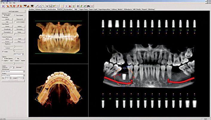 Anatomage-Invivo-3D-imaging-software-details-impression