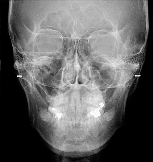 KaVo-OP-3D-Pro-pan-x-ray-features-versatile