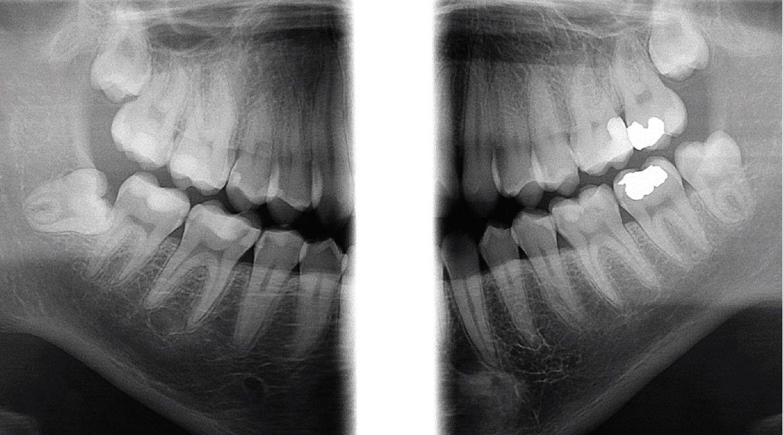 orthopantomograph-op-3d-_cone-beam_bitewing_